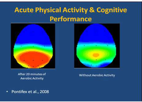Brain image after excercise