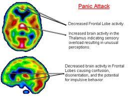 Survival Mode Brain